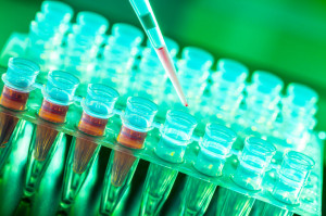 27238763 - laboratory research of cancer diseases,  rack with rna samples