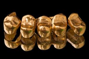Gold dental crowns on black